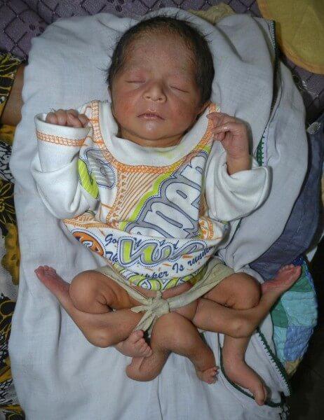 2841_158710_425237 【閲覧注意】パキスタンで6本足の赤ん坊が生まれる 画像
