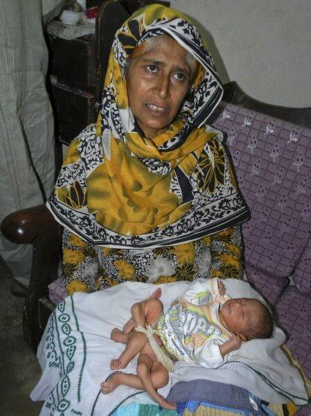 2841_158711_621128 【閲覧注意】パキスタンで6本足の赤ん坊が生まれる 画像