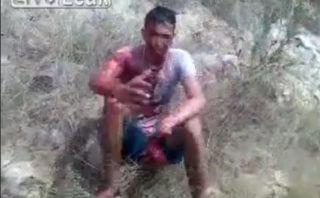 【閲覧注意】マチェーテで殺し合いをした男に近付いてみると傷がヤバすぎた…